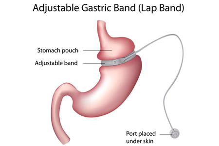 gastric-band